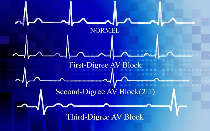 EKG Blocks